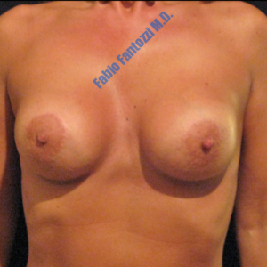 Breast lift case 7a (with implants) – After
