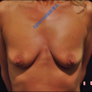 Breast lift case 7a (with implants) – Before