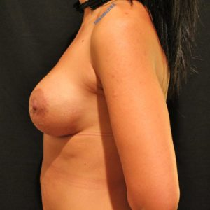 Breast lift case 7b (with implants) – After