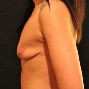 Breast lift case 7b (with implants) – Before