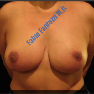 Breast reduction case 1a – After