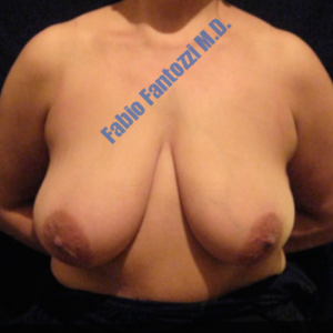 Breast reduction case 1a – Before