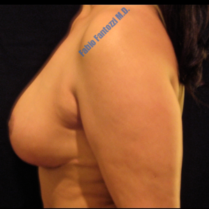 Breast reduction case 1b – After