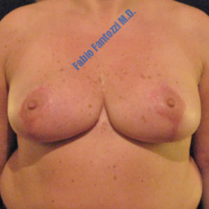 Breast reduction case 2a – After