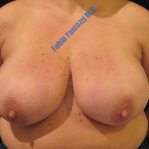 Breast reduction case 2a – Before
