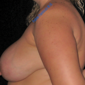 Breast reduction case 2b – Before