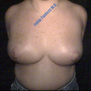 Breast reduction case 3 – After