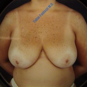 Breast reduction case 3 – Before