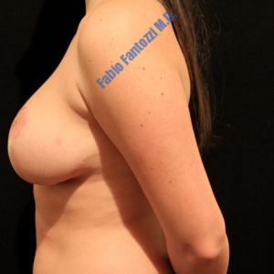 Breast reduction case 4 – After