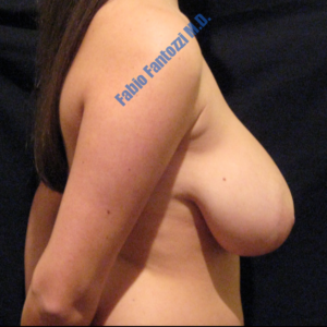Breast reduction case 4 – Before