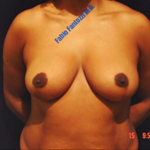 Breast reduction case 5 – After