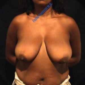 Breast reduction case 5 – Before