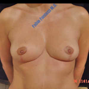 Breast reduction case 6 – After