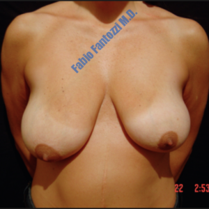 Breast reduction case 6 – Before