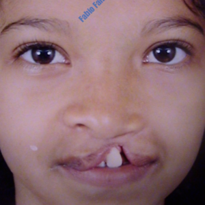 Correction of Cleft Lip – Before