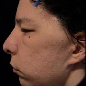 Ear Correction case 6 – Before