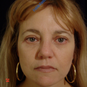 Face lift case 2a (including blefaroplasty) – After