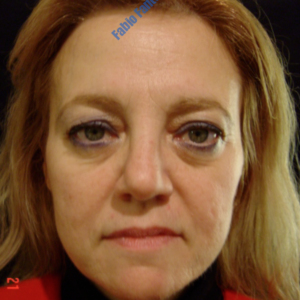 Face lift case 2a (including blefaroplasty) – Before