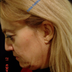 Face lift case 2b (side view, neck lift & liposuction) – Before