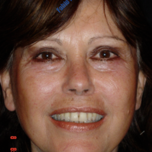 Face lift case 3a (including blefaroplasty) – After