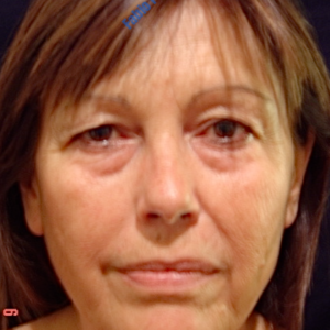 Face lift case 3a (including blefaroplasty) – Before