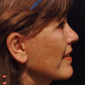 Face lift case 3b (side view, neck lift & liposuction) – After
