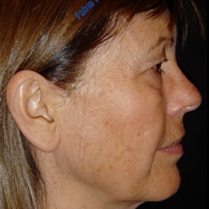 Face lift case 3b (side view, neck lift & liposuction) – Before