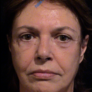 Face lift case 4 (including blefaroplasty) – After