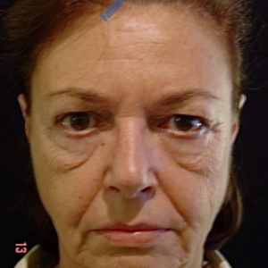 Face lift case 4 (including blefaroplasty) – Before
