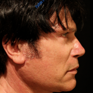 Face lift (male) case 6 – After