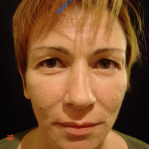 Facelift case 1 (including blefaroplasty) – Before