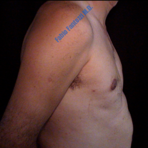Gynecomastia case 2 – After