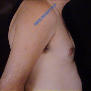 Gynecomastia case 2 – Before