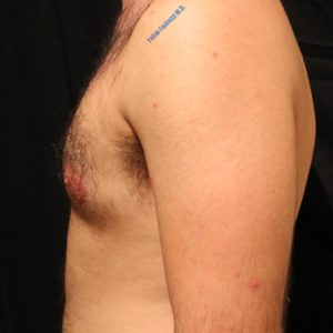 Gynecomastia case 3 – After