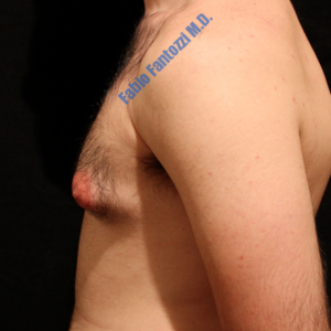 Gynecomastia case 3 – Before