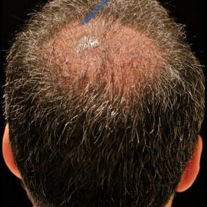 Hair Transplantation case 1 – After