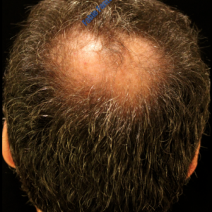 Hair Transplantation case 1 – Before