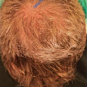 Hair Transplantation case 2 – After