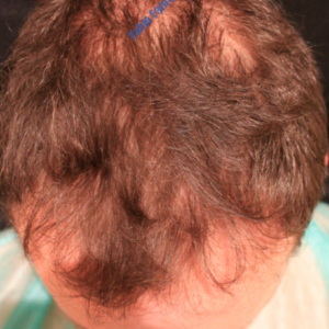 Hair Transplantation case 2 – Before