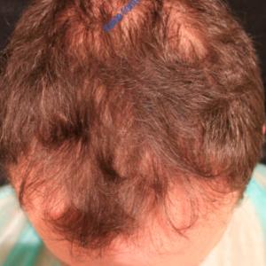 Hair Transplantation case 2 – Before
