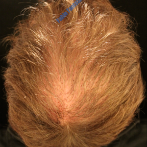 Hair Transplantation case 3 – After