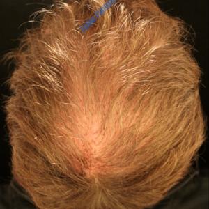 Hair Transplantation case 3 – After