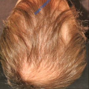 Hair Transplantation case 3 – Before