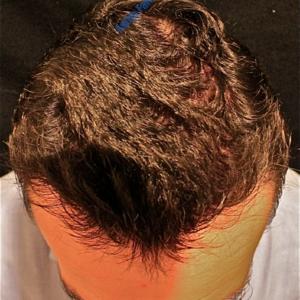 Hair Transplantation case 4 – After