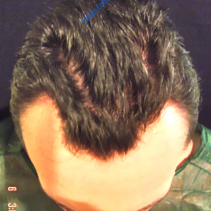Hair Transplantation case 4 – Before