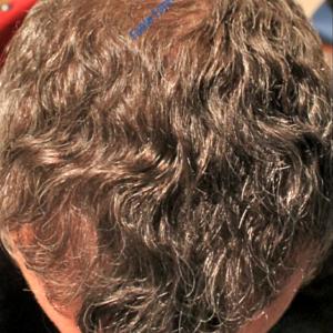Hair Transplantation case 5 – After