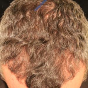 Hair Transplantation case 5 – Before