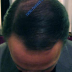 Hair Transplantation case 6 – After