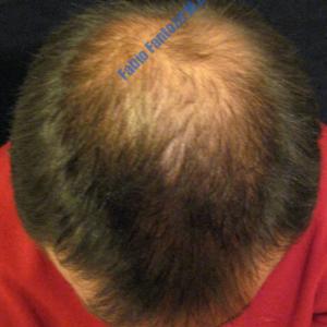 Hair Transplantation case 6 – Before