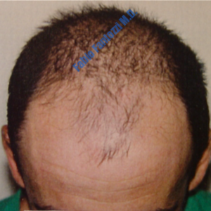 Hair Transplantation case 7 – Before